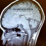 Image of brain with text: Brain Awareness Week - What do you know about your brain?